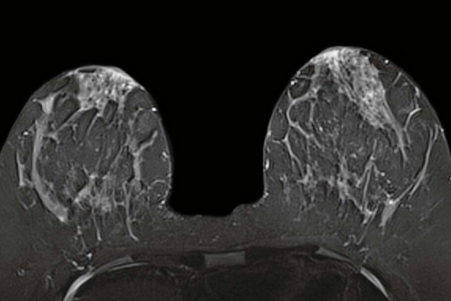 Breast Mri Found To Result In More Biopsies Than Mammography