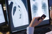 reimagine radiology image