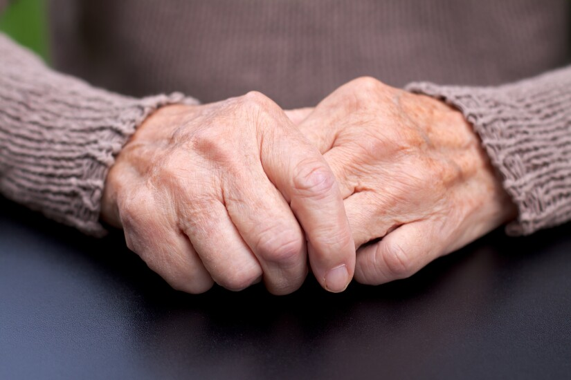 Arthritis.Getty.jpg